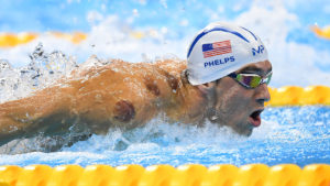Phelps cupping